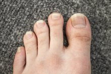 Infected Toe Treatment