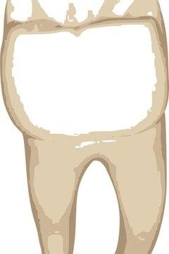 Sketch of a molar