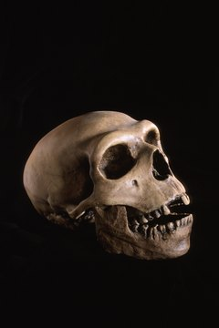 Forensic anthropologists provide details about a person's life from their bones