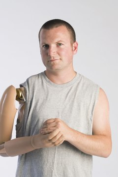 Man with prosthetic arm