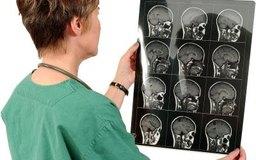 Los radiólogos, también conocidos como técnicos de rayos X, están entre los menos pagados de todos los técnicos radiólgos.