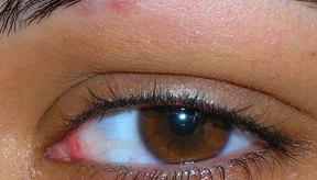 Un tratamiento para curar hinchazón y picazón en los ojos es díficil.
