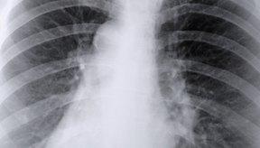 La fibrosis pulmonar o cicatrices pulmonares pueden hacer que la respiración sea sumamente dificultosa.