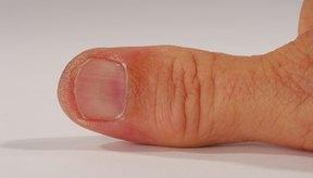 En un momento u otro, casi todo el mundo experimenta un dedo aplastado.