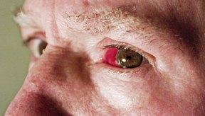 Las lentes de contacto pueden causar condiciones serias que requieren el tratamiento de un médico.
