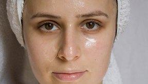 No todos los tratamientos para el acné son apropiados para todas las personas.