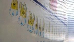 Una carta dental muestra el número de dientes.