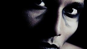 Las manchas oscuras debajo de los ojos podrían deberse a algo más que el cansancio.