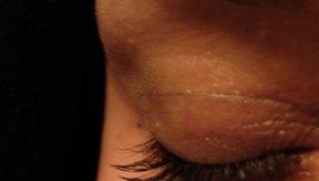 La pérdida de cejas puede indicar desórdenes severos.