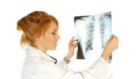 Los métodos para extraer el agua de los pulmones dependen de la forma en la que el agua entró a ellos.