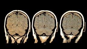 El lóbulo occipital es el fragmento de la corteza localizado en la parte posterior del cerebro.