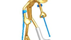 Los desgarros en el menisco pueden ocurrir en diversas situaciones.