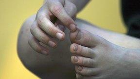 Alrededor del 90 por ciento de los ataques de gota son en las articulaciones de los dedos gordos de los pies.