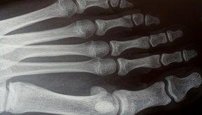 Puedes utilizar remedios caseros para curar fracturas de los huesos del pie.