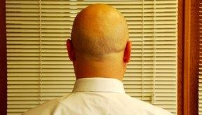 Hay muchas diferentes condiciones o problemas asociados al cuero cabelludo.