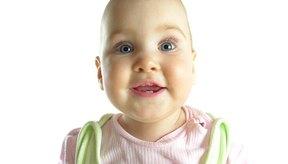 Todos los bebés nacen con zonas blandas en sus cabezas.