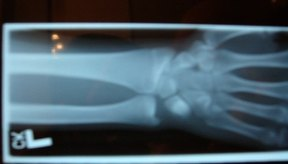 Radiografía del antebrazo.