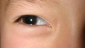 Los ácaros pueden causar aparción de caspa en las cejas.