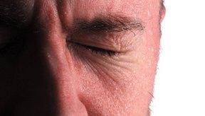La sudoración excesiva suele ser embarazosa.