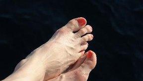 Los vendajes del post-operatorio se dejan en el pie durante un máximo de 12 días para evitar complicaciones como la infección.