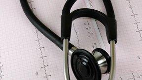La ablación cardíaca es un procedimiento mínimamente invasivo a menudo usado para tratar la fibrilación auricular, aleteo auricular o taquicardia.