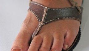 Tratamiento casero para las uñas de los pies con hongos verdes o amarillos.