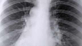 La piña limpia y tonifica los pulmones.