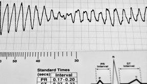 En el electrocardiograma se pueden determinar con precisión las alteraciones del ritmo cardíaco y el diagnóstico de la ayuda.