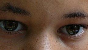 Elimina las bolsas de los ojos.
