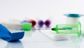 Un sencillo análisis de sangre detectará si padeces o no de hipotiroidismo.