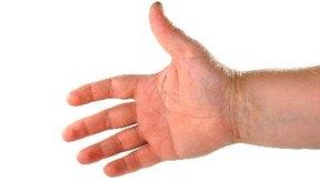 El síndrome del túnel carpiano es una afección dolorosa de la mano y la muñeca.