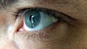 La iInflamación de la córnea puede crear distorsiones visuales.