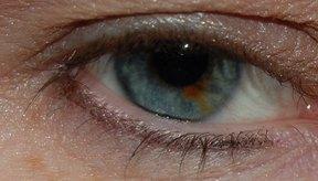 Los puntos negros, o nevi, pueden aparecer en la parte blanca del ojo o en el iris.