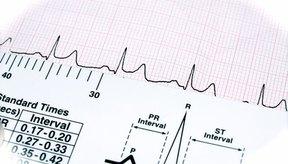 En los Estados Unidos, cada 34 segundos una persona sufre un ataque al corazón.