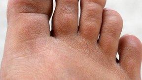 Los huesos, ligamentos y tendones pueden dañarse o inflamarse por el esfuerzo constante.