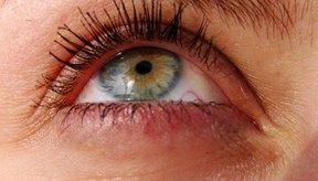 El ejercicio puede mejorar la apariencia de las bolsas debajo de los ojos.