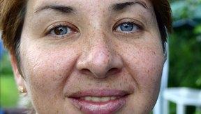 Las manchas oscuras como las pecas pueden ser causadas por factores hereditarios.