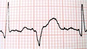 El sistema cardiovascular ayuda en muchas formas a mantener la homeostasis.