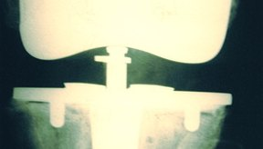 Signos y síntomas de líquido en la rodilla.