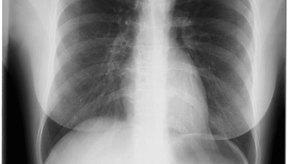 Tu quiropráctico puede recomendar una radiografía para ayudar a diagnosticar tu condición. La decisión de tomar las radiografías se debe basar en la necesidad médica.