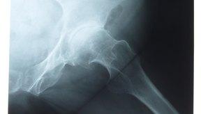 El dolor de cadera limita la movilidad y la función, especialmente en las personas mayores.