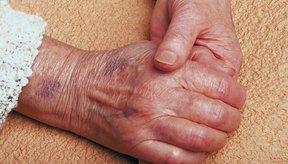 La edad puede contribuir al desarrollo de moretones fácilmente.