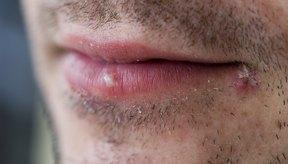 Un primer plano de ampollas en los labios de un hombre.