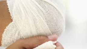 El método de tratamiento DECE consiste en Descansar, Enfriar, Comprimir y Elevar el codo afectado.
