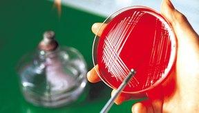 Se utilizan varios métodos para aislar bacterias.