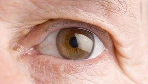 Los depósitos grasos de colesterol son más comunes cerca de la nariz.