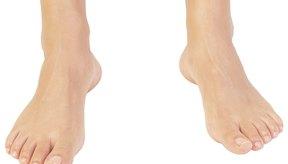 ¿Cuáles son los tratamientos para los pies hinchados?