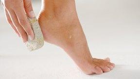 Exfolia la piel seca con una piedra pómez para revelar la piel sana debajo.
