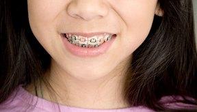 Cómo blanquear los dientes después de que te quiten los frenillos o aparatos.