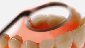 La erosión dental es una de las principales preocupaciones sobre la exposición prolongada de los dientes a las bebidas ácidas.